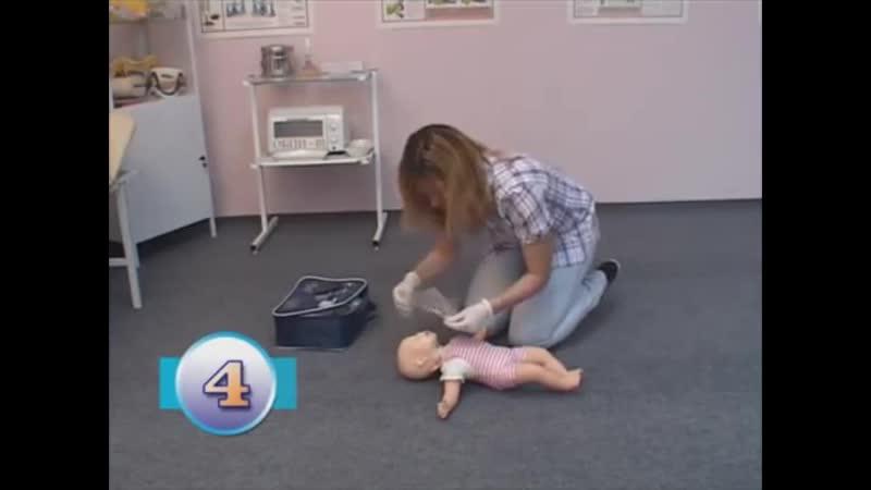 Проведение сердечно-лёгочной реанимаци у новорождённых