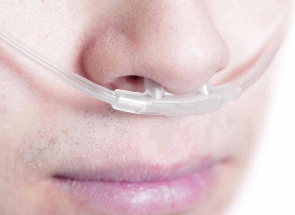 Лица, проходящие оксигенотерапию, могут использовать носовую канюлю в своем доме.