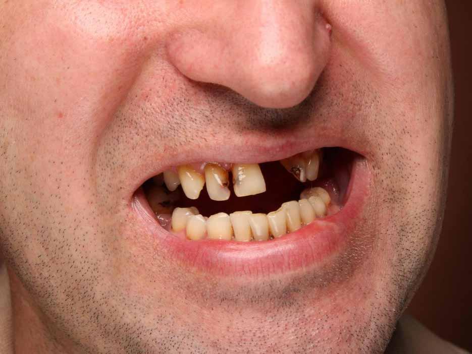 Телескопический протез следует использовать, когда заболевание полости рта является причиной потери зубов.