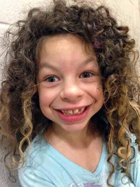 Специфические черты лица, такие как широкий рот, маленький нос, широко расставленные зубы и полные губы.