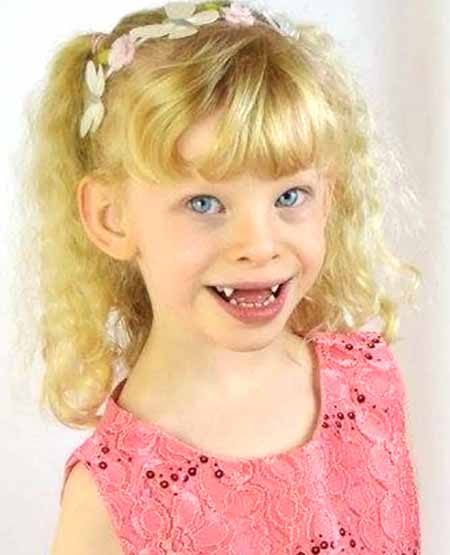 Синдром Уильямса - это нарушение развития, которое поражает многие части тела.