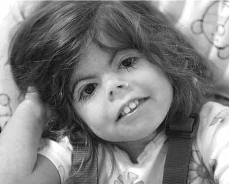 синдром Уильямса является генетическим заболеванием