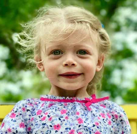Человек с синдромом Уильямса имеет 50% шанс передать расстройство каждому из его или ее детей.