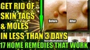 How To Remove Skin Tags Naturally Get Rid Of Moles On Skin Fast 17 Home Remedies That Work