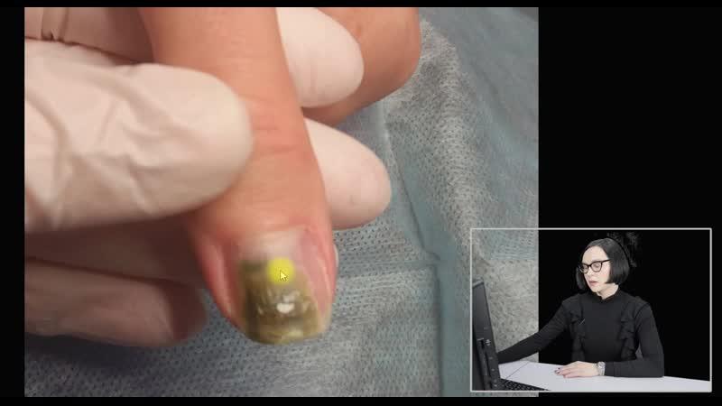 Рубрика Тяжелый случай_ онихолизис (отслойка ногтя) синегнойная палочка