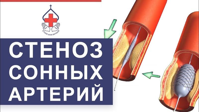 💤 Уникальный метод лечения атеросклероза сонных артерий. Атеросклероз сонных артерий. 12