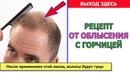 Маска с горчицей для роста волос РЕЦЕПТЫ