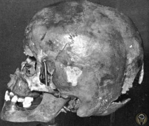Череп 8-летнего Клауса Юнга, первой жертвы немецкого серийного убийцы Юргена Барча