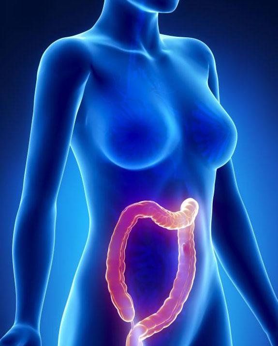 Клетки любой из многих желез в толстой кишке могут мутировать и приводить к аденокарциноме.