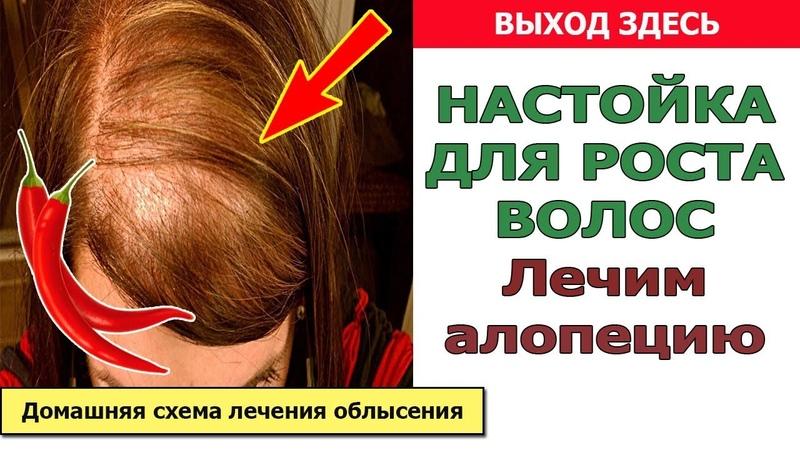 Лечение алопеции - настойка для роста волос. Домашняя схема лечения облысения