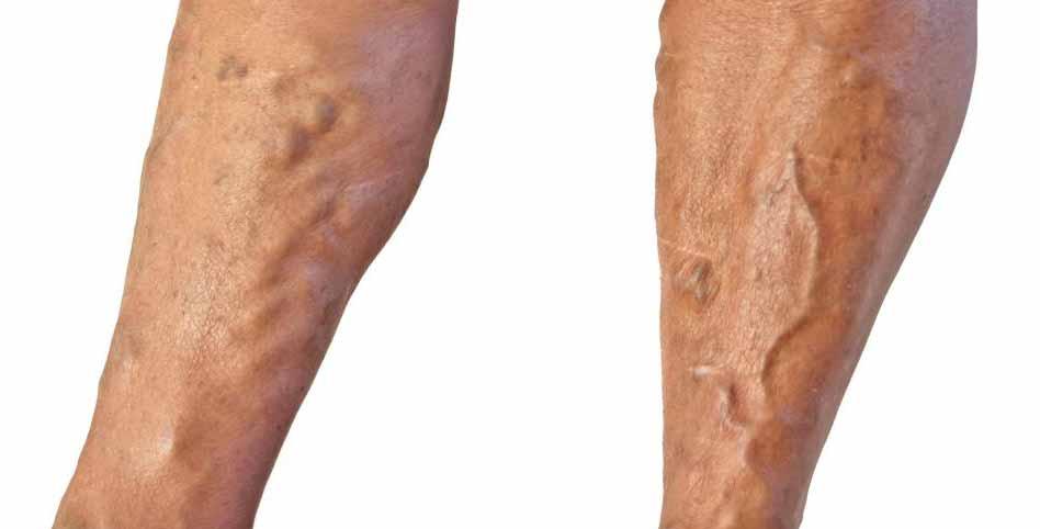 Сепия может быть использована для лечения варикозного расширения вен.