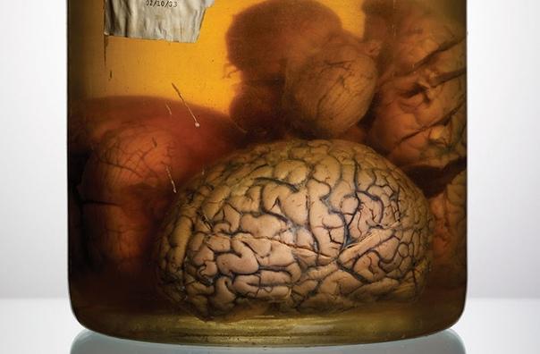 Это редчайшая коллекция фотографий человеческих мозгов, которую собрал фотограф Адам Вурхес Он выполнял редакционное задание научно-популярного журнала Scientific American и по долгу службы