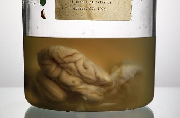 Это редчайшая коллекция фотографий человеческих мозгов, которую собрал фотограф Адам Вурхес