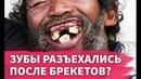 Зубы разъехались после брекетов? Ретейнеры, капы.