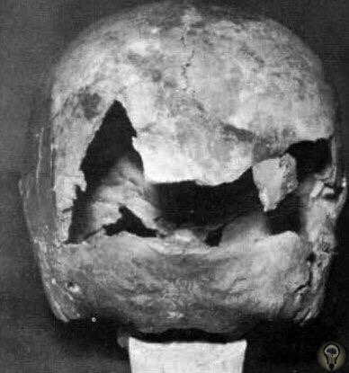 Череп 8-летнего Клауса Юнга, первой жертвы немецкого серийного убийцы Юргена Барча Это было первое убийство Юргена Барча будучи 15-летним подростком. Всех своих жертв Барч уговаривал, чтобы они