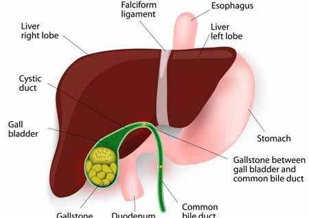 Когда организм вырабатывает перенасыщенную желчь с высоким содержанием холестерина, могут образовываться камни в желчном пузыре.