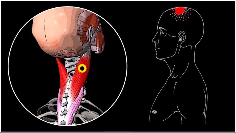 БОЛИТ ГОЛОВА И ШЕЯ 🔴 Ременная мышца головы и шеи ⭐ SLAVYOGA