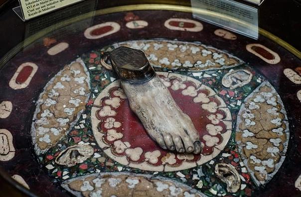 В анатомическом музее Флоренции можно увидеть стол, который целиком сделан из человеческого тела