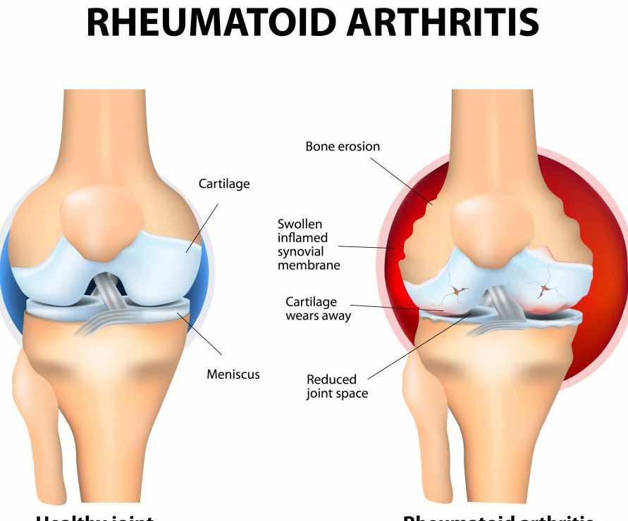 При ревматоидном артрите сохраняется продолжающаяся экспрессия цитокинов вблизи синовиальных мембран, которые составляют суставы.
