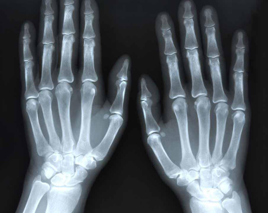 Рентген может быть назначен для диагностики артрита.