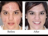 Acne No More Book Mike Walden SCAM or Legit
