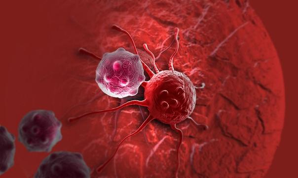 Ультразвук определенной частоты уничтожает раковые клетки Команда исследователей Калифорнийского технологического института предложила новый и радикальный метод уничтожения раковых клеток с