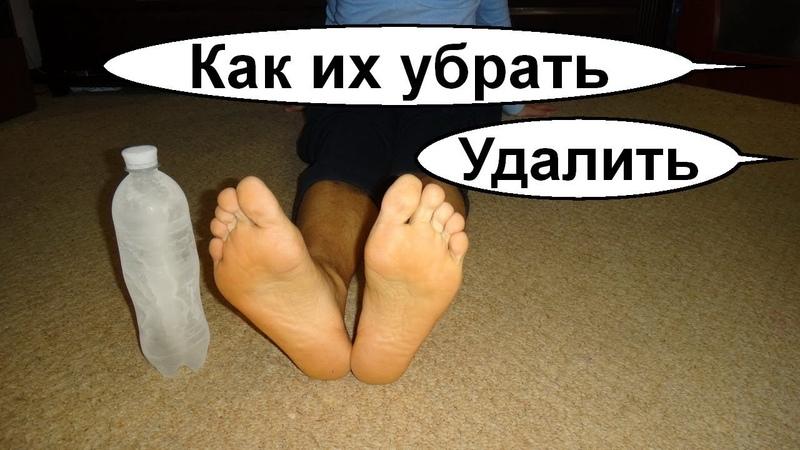 Как убрать натоптыши на ногах Как избавиться от натоптышей №2