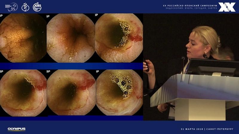 Эндоскопия тощей и подвздошной кишки - текущее состояние и ближайшие перспективы
