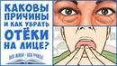 ОТЁКИ Отёки ЛИЦА Как убрать отёки на лице Задержка воды Вены Лимфа