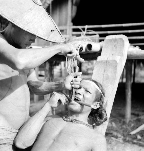 Вот как в 1938 году в Индонезии выглядела церемония спиливания зубов напильником.
