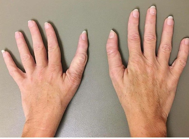 Трехфаланговый большой палец (ТПТ