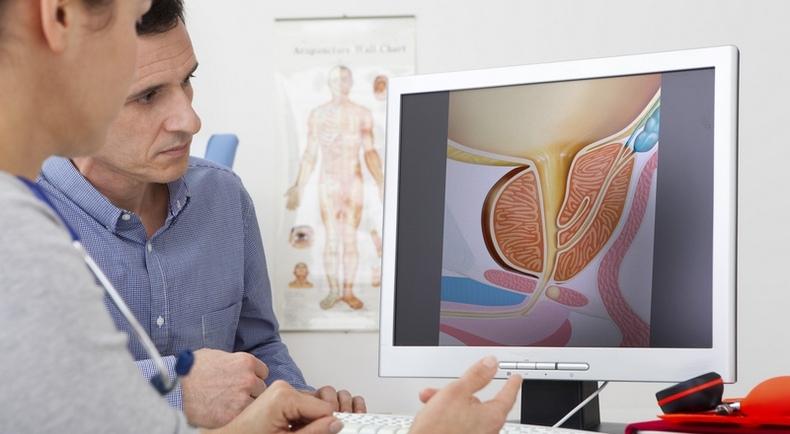 Аноскопия высокого разрешения используется для выявления анальной интраэпителиальной неоплазии.