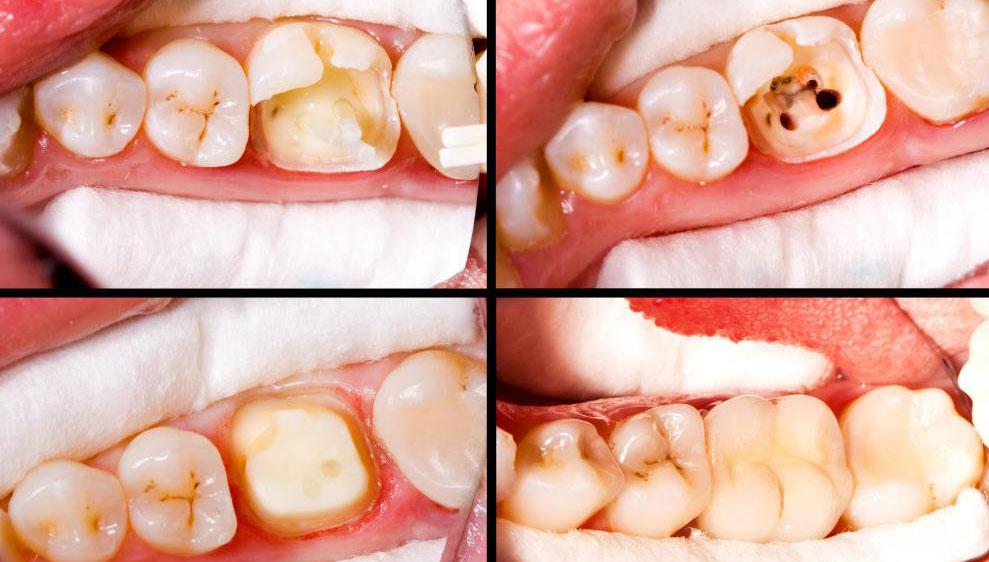 Чувствительность зубов является наиболее распространенной формой боли, возникающей после наполнения.