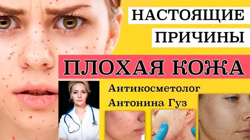 Антикосметолог / ПЛОХАЯ КОЖА - ПРИЧИНЫ