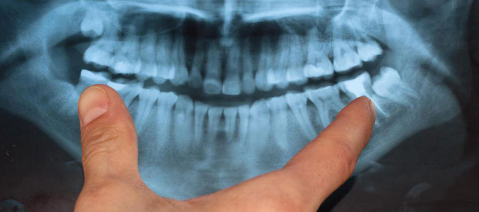 Химиотерапия, лучевая терапия и хирургия являются наиболее распространенными методами лечения рака челюсти.