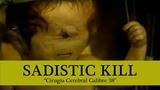 SADISTIC KILL - Cirugia Cerebral Calibre 38 (Sub English - Espa