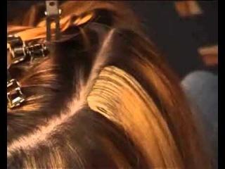 Жирная себорея лечение выпадают волосы