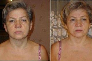 похудение лица фото до и после