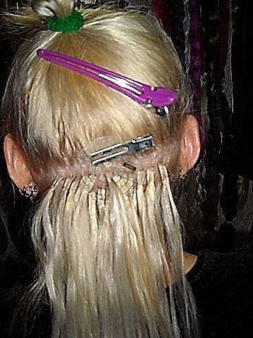 Пересадка луковиц волос