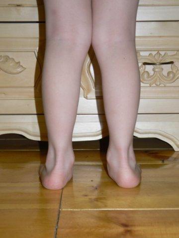 Как сделать чтобы нога выросла