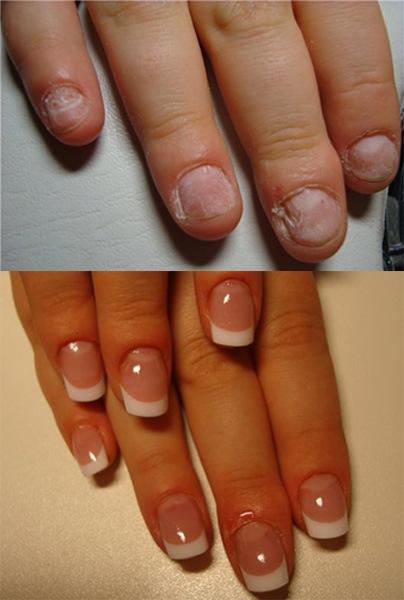 Можно ли нарастить ногти на обгрызанные ногти