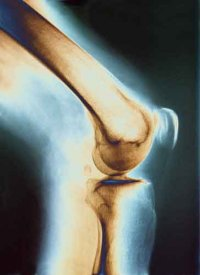 Рентгеновский снимок коленного сустава надежнее отпечатка пальца.