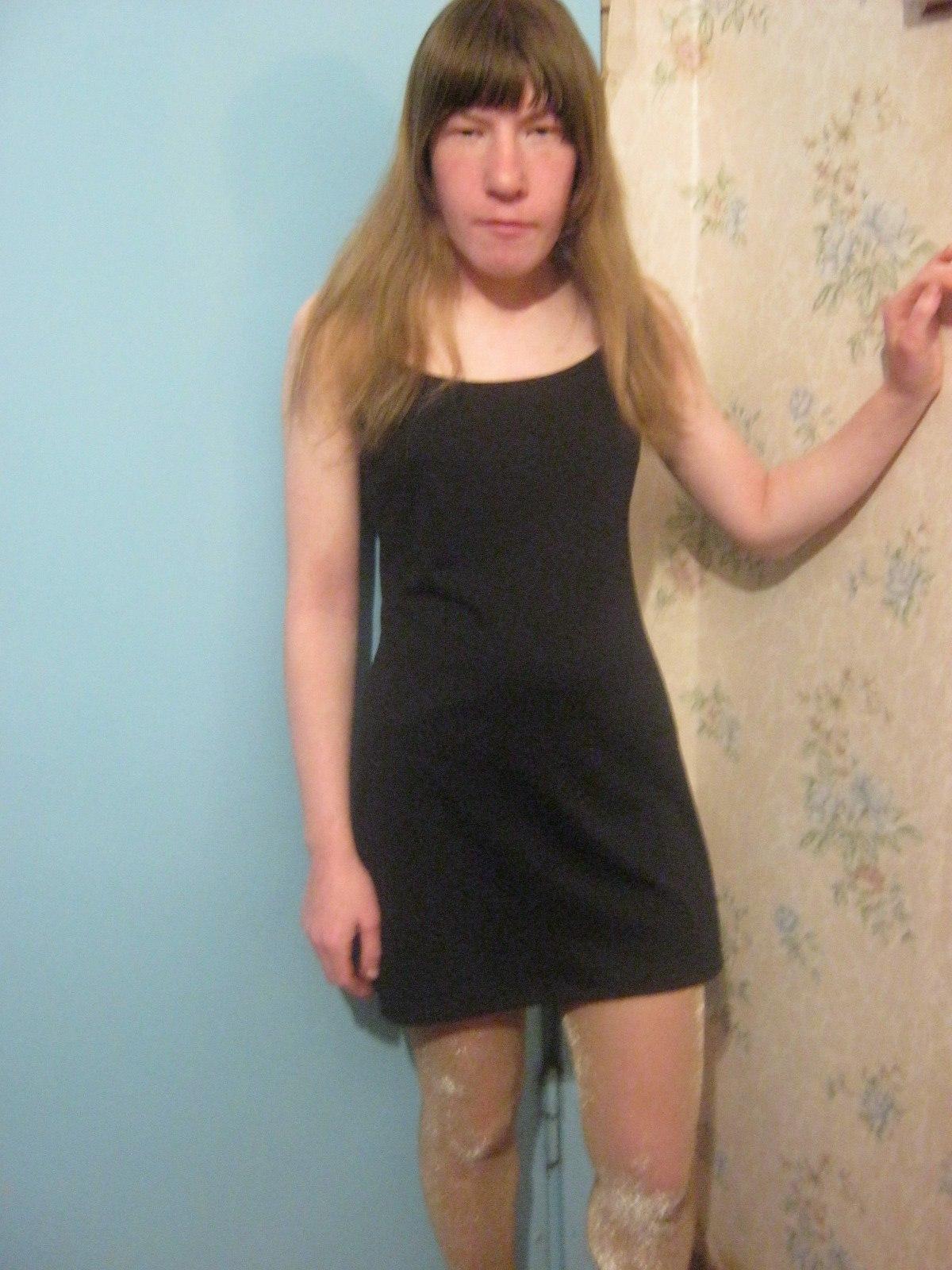 Фото некрасивых девушек в контакте раком 9 фотография