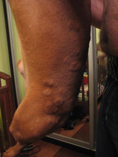 аллергия на гидролизат молочного белка