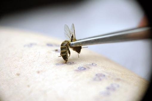 Лечение укусами пчел - не панацея, но помогает при многих заболеваниях.  При неэффективности вышеописанных методов...