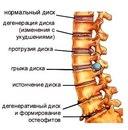 ...второго человека, после 20 лет, в той или иной степени отмечаются косвенные признаки остеохондроза позвоночника.