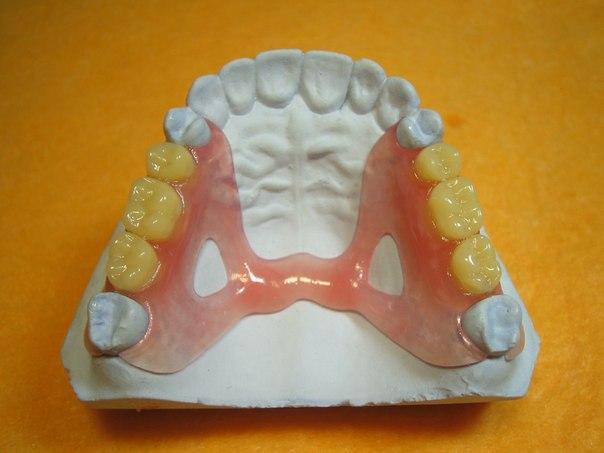 Протезирование и имплантация зубов в протезирование зубов в белгороде цены описание на сайте