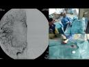 Селективный внутриартериальный тромболизис