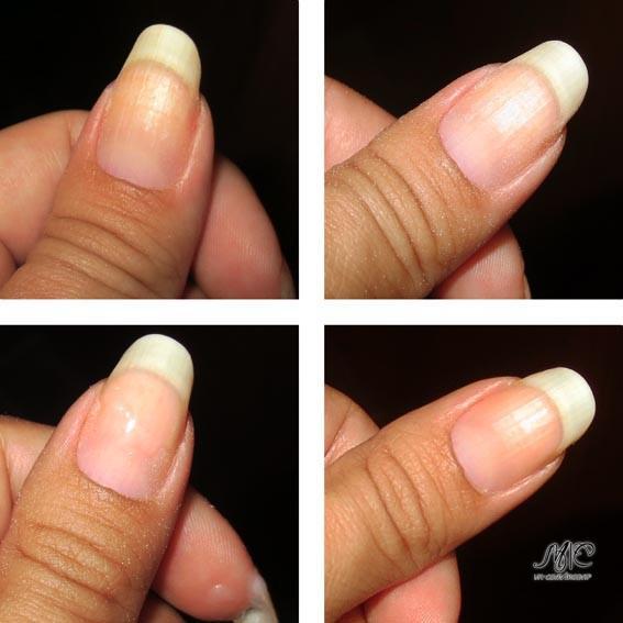 Чем быстро отбелить ногти в домашних условиях - ФоксТел-Юг