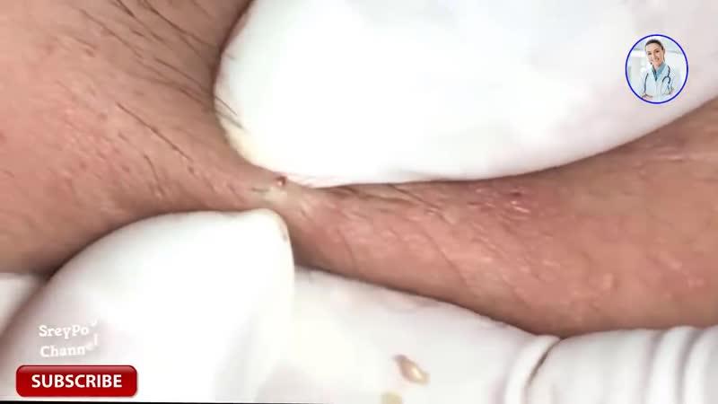 Много чёрных точек в ускоренном темпе - how to removal blackhead and how to get rid of blackhead - blackhead on face 68